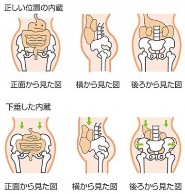 産後骨盤矯正の重要性イメージ